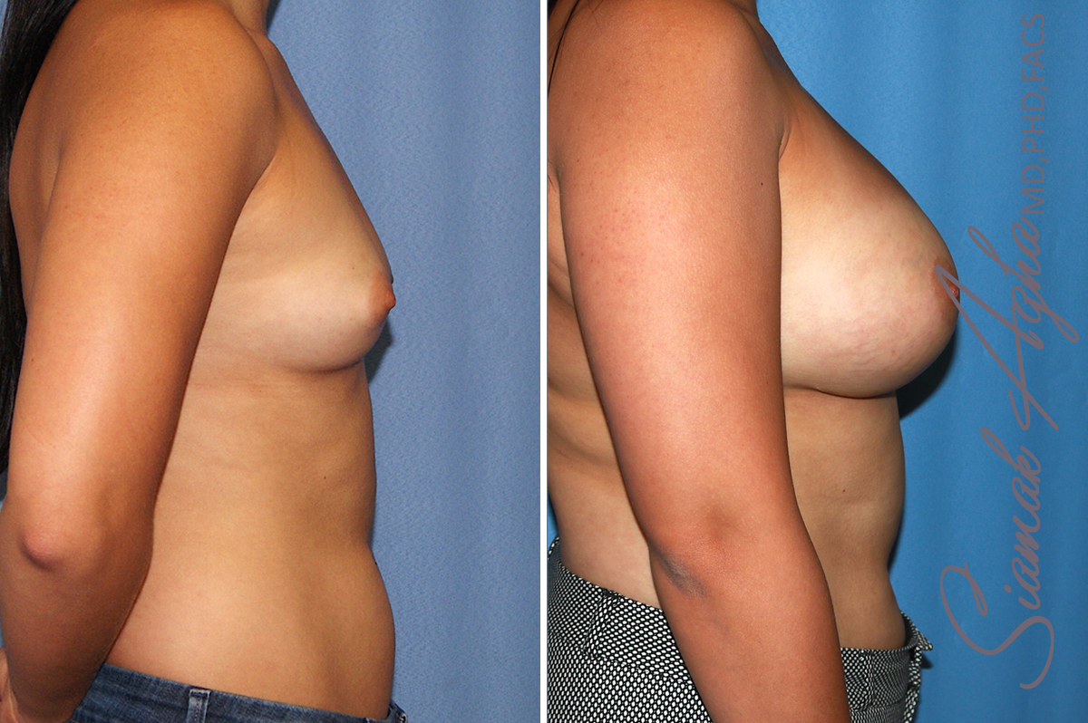 Orange County Newport Beach breast augmentation 39 Right View