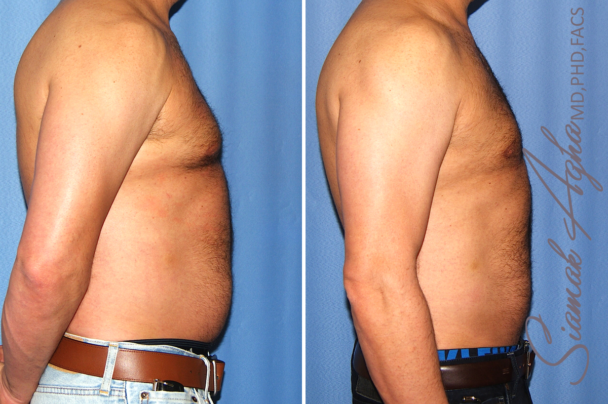 Orange County Newport Beach Male Liposuction 21 Right View