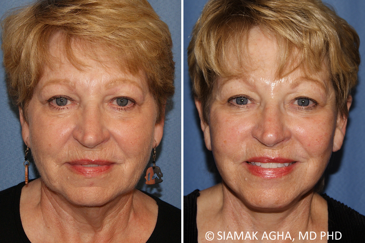 Orange County Newport Beach Facelift Patient 14