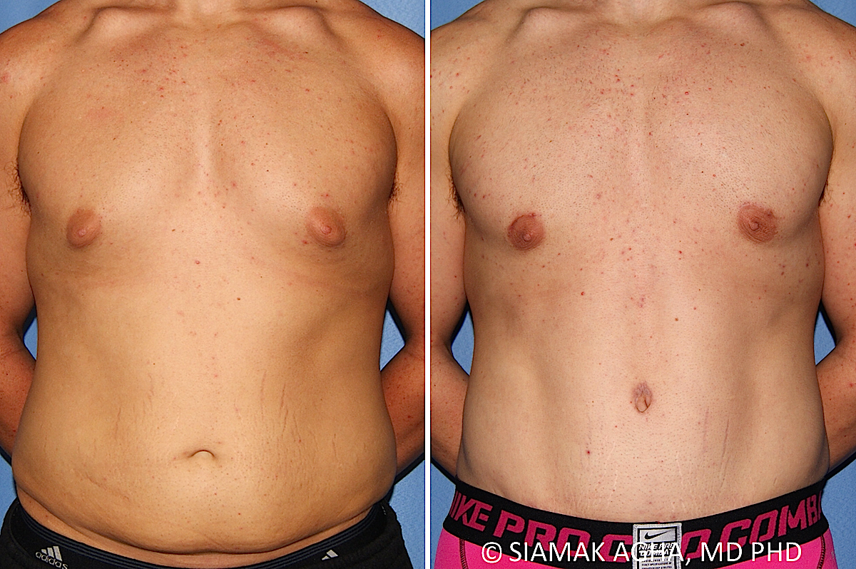 Orange County Newport Beach Male Breast Reduction 13 Front View