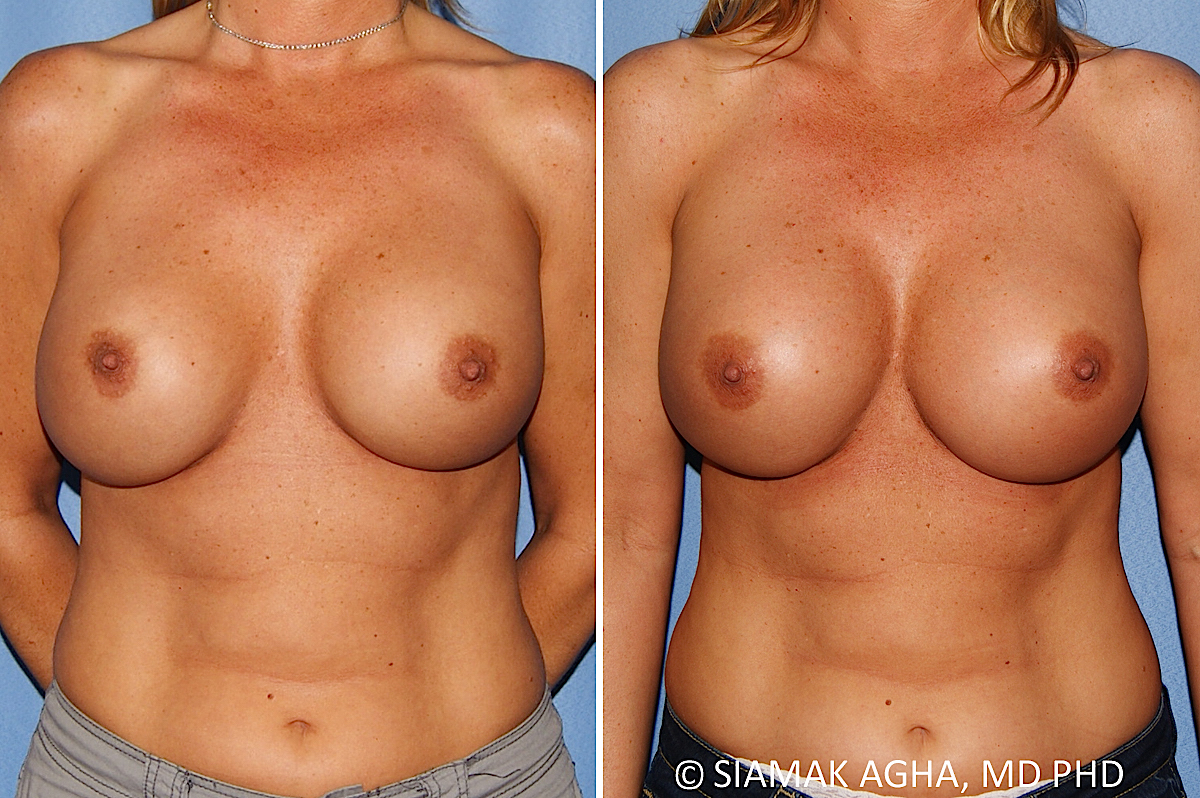 Orange County Newport Beach Breast Augmentation Revision Patient 13