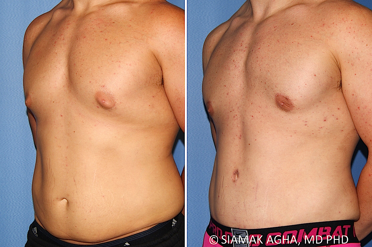 Orange County Newport Beach Male Breast Reduction 13 Front Left View