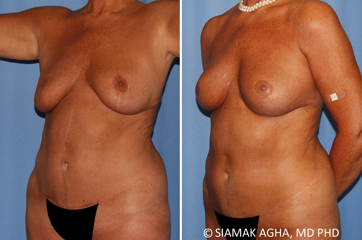 Orange County Newport Beach Breast Lift 9 Front Left View