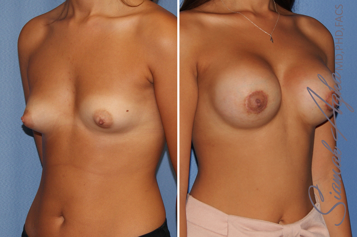 Orange County Newport Beach breast augmentation 40 Front Right View