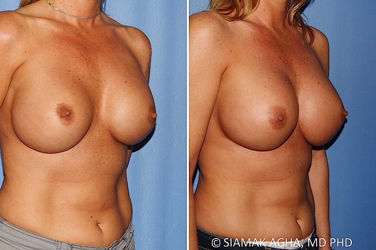 Orange County Newport Beach Breast Augmentation Revision 13 Front Right View