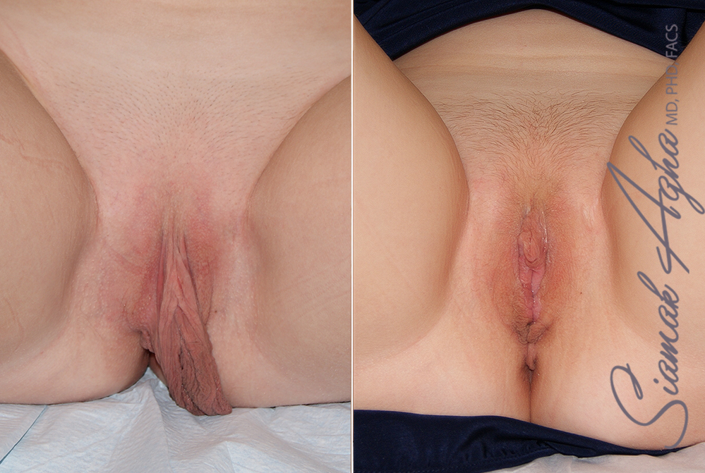 Orange County Newport Beach Labiaplasty Patient 2