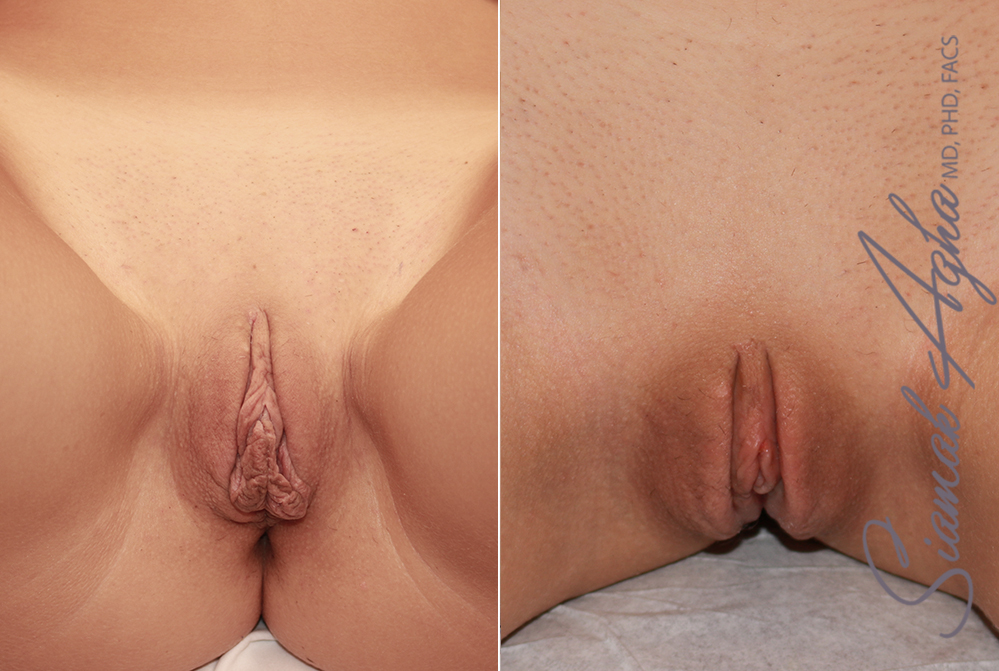 Orange County Newport Beach Labiaplasty Patient 3