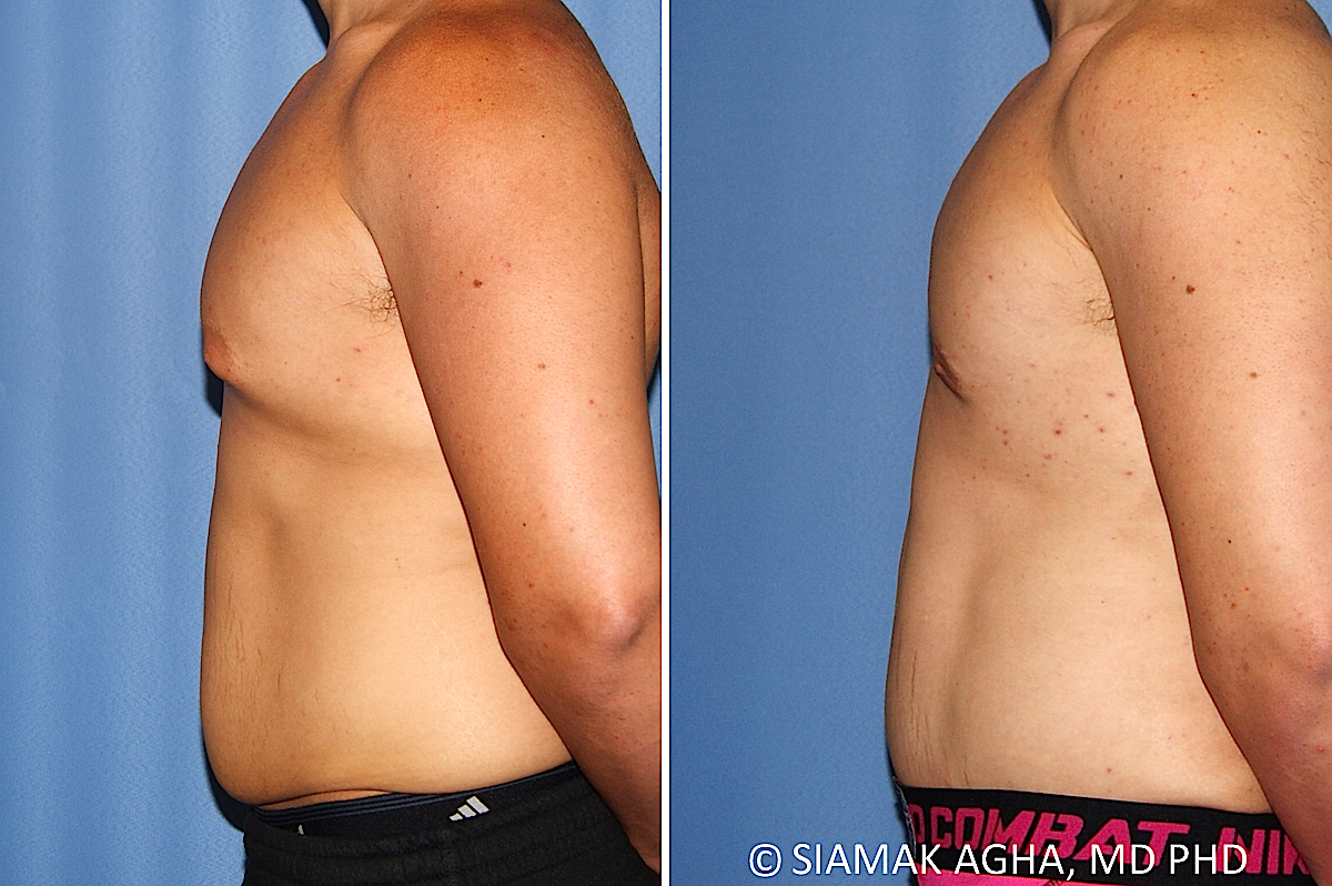 Orange County Newport Beach Male Breast Reduction 13 Left View