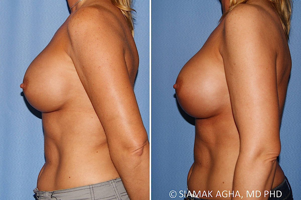 Orange County Newport Beach Breast Augmentation Revision 13 Left View