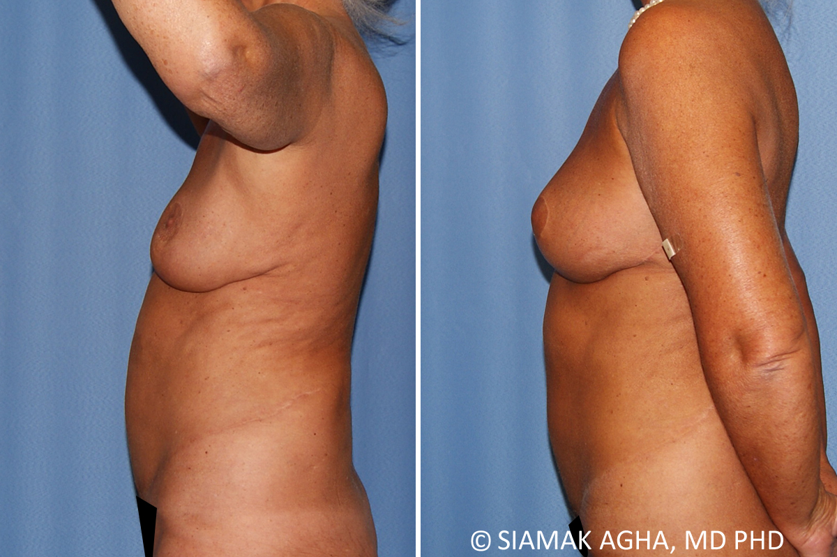 Orange County Newport Beach Breast Lift 9 Left View