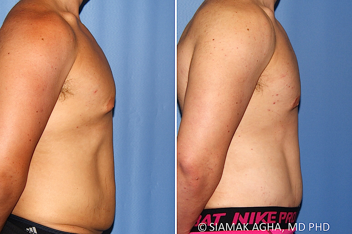 Orange County Newport Beach Male Breast Reduction 13 Right View