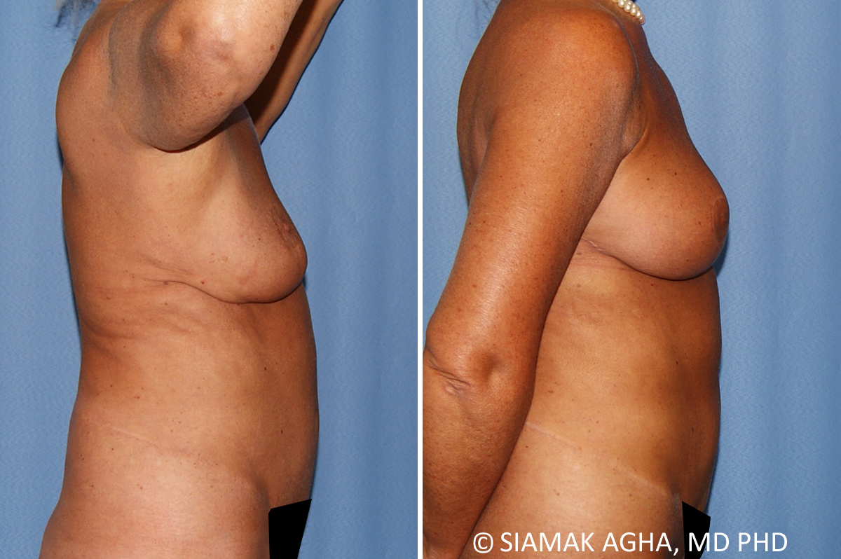 Orange County Newport Beach Breast Lift 9 Right View