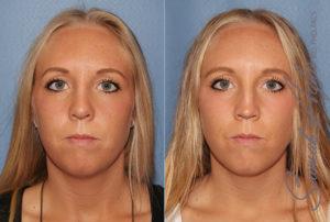 Orange County Rhinoplasty Patient 9