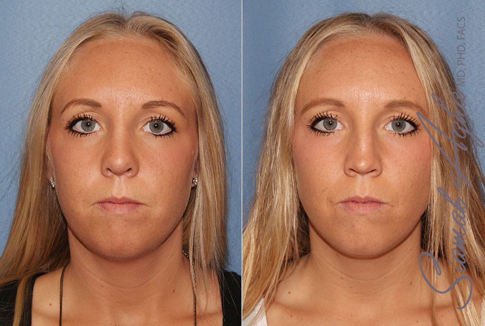 Orange County Newport Beach Rhinoplasty Patient 9