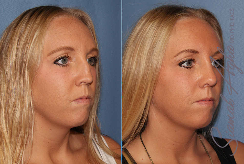 Orange County Newport Beach Rhinoplasty 9 Front Right View