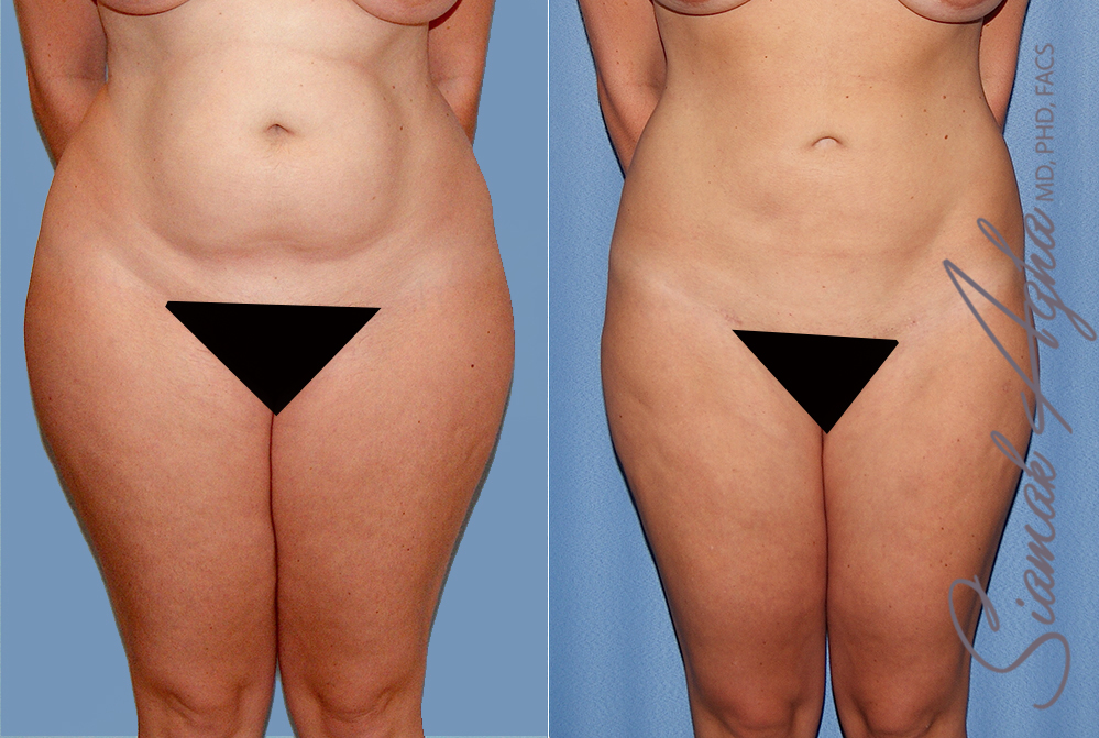 Orange County Newport Beach Liposuction Patient 24