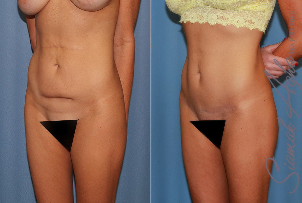 Orange County Newport Beach Tummy Tuck