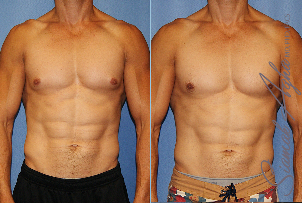 Orange County Newport Beach Male Breast Reduction Patient 15