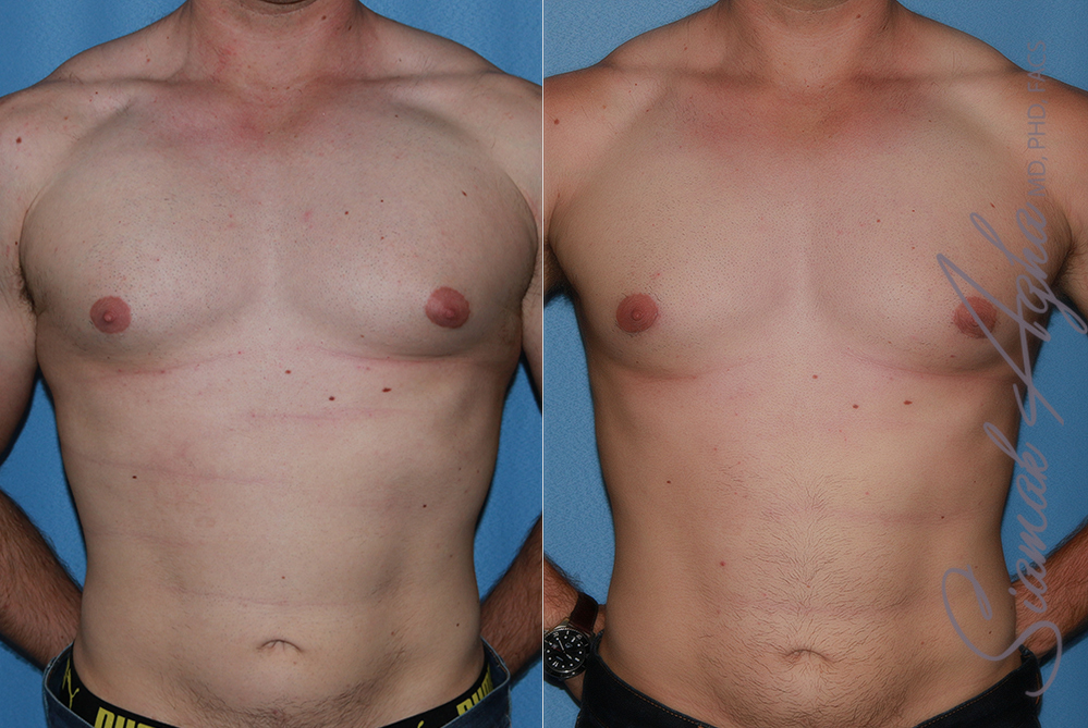 Orange County Newport Beach Male Breast Reduction Patient 14
