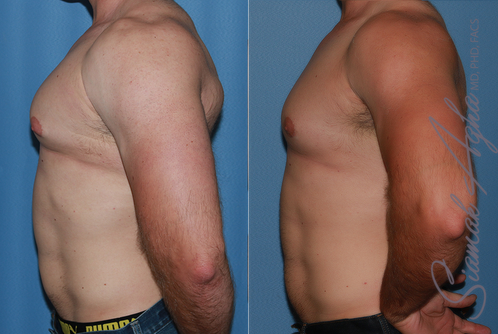 Orange County Newport Beach Male Breast Reduction