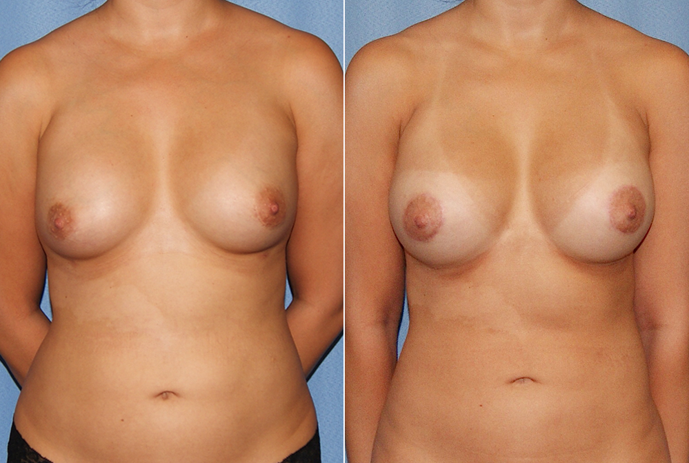 Orange County Newport Liposuction Patient 24 with Breast Aug Revision Front View