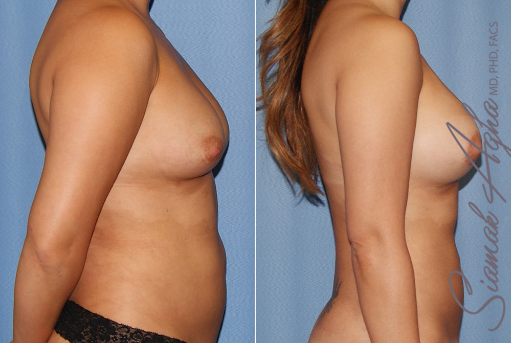 Orange County Newport Liposuction Patient 24 with Breast Aug Revision Right View