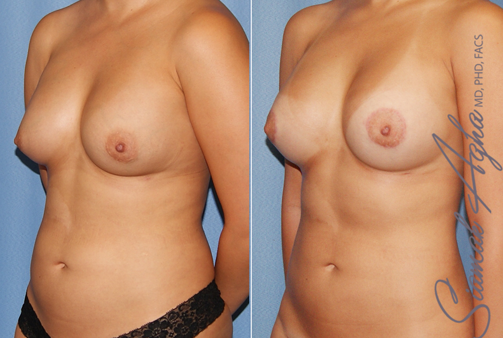Orange County Newport Liposuction Patient 24 with Breast Aug Revision Left Front View