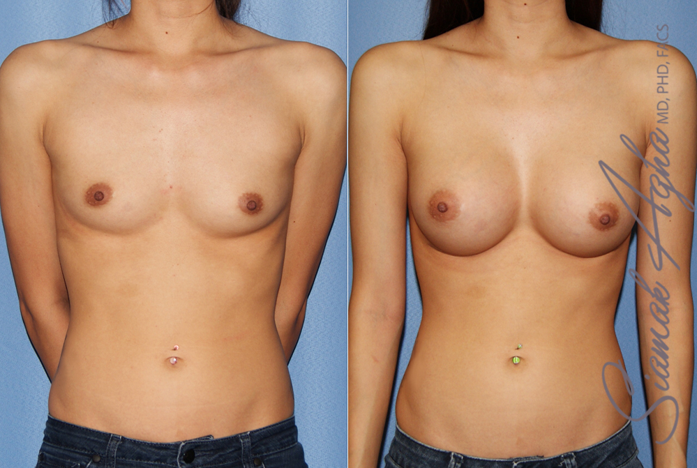 Orange County Newport Beach breast augmentation 42 Front View