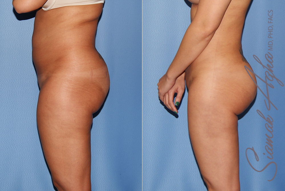 Orange County Newport Liposuction Patient 24 with Breast Aug Revision Left View