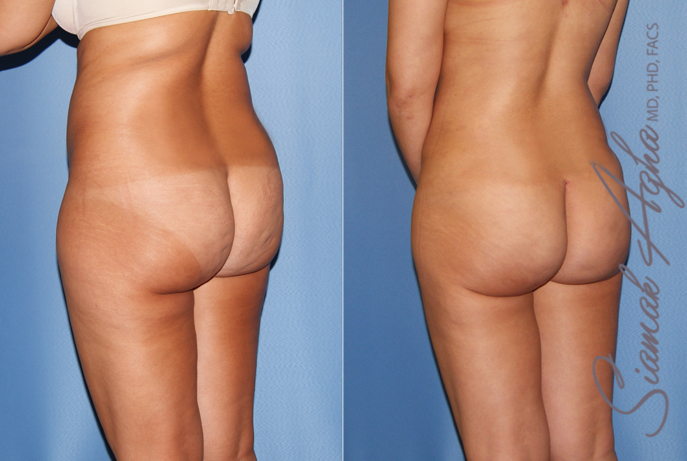 Orange County Newport Liposuction Patient 24 with Breast Aug Revision Left Back View