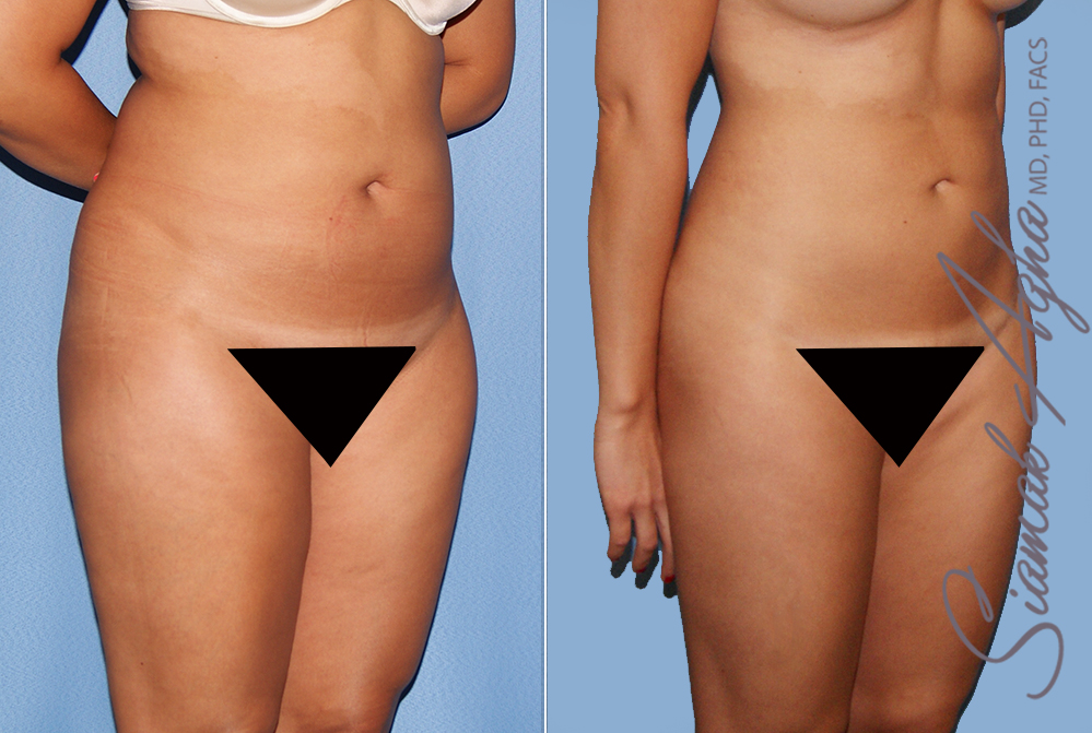 Orange County Newport Liposuction Patient 24 with Breast Aug Revision Front Right View