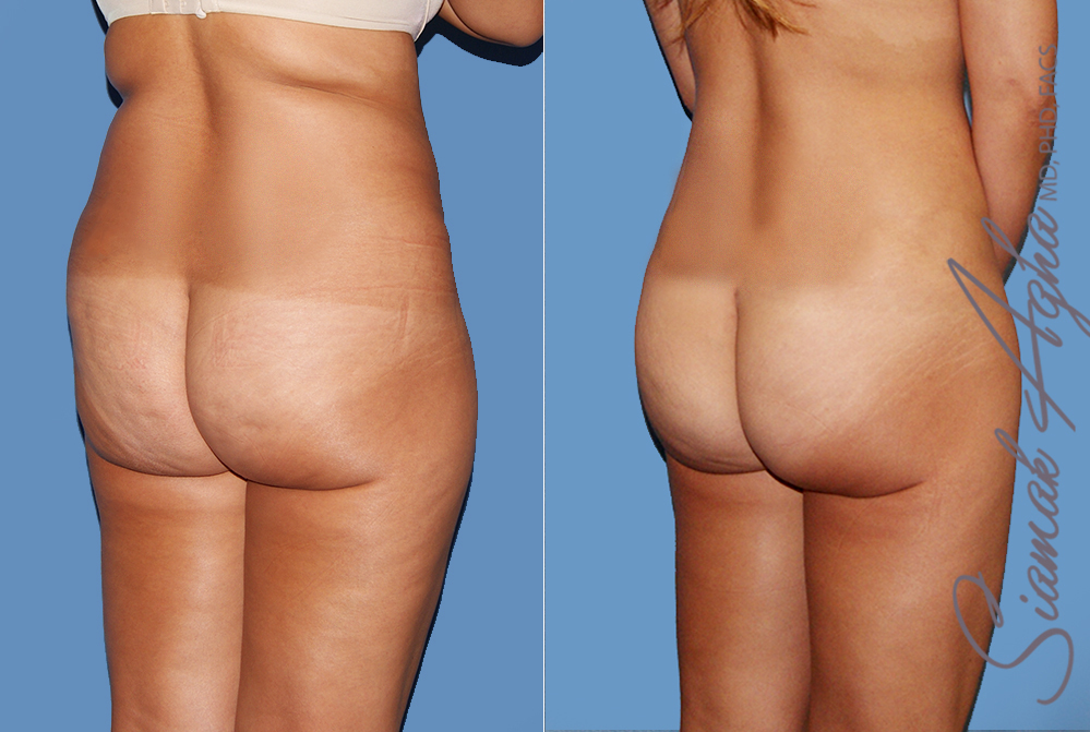 Orange County Newport Liposuction Patient 24 with Breast Aug Revision Right Back View