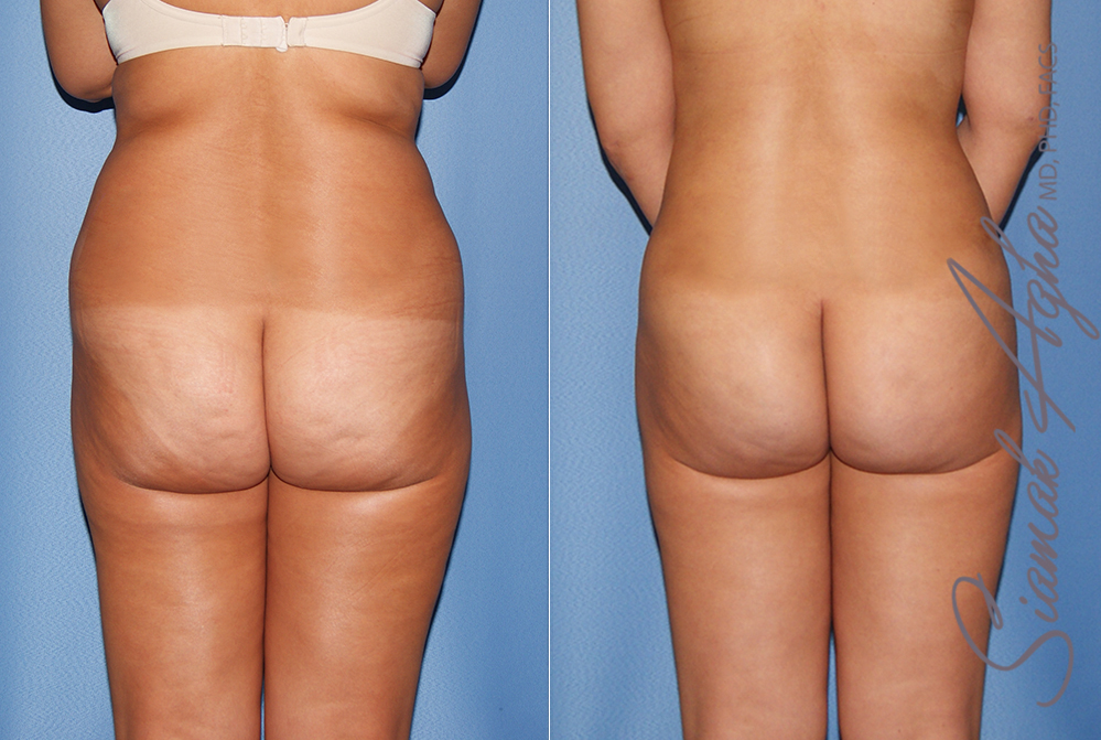 Orange County Newport Liposuction Patient 24 with Breast Aug Revision Back View