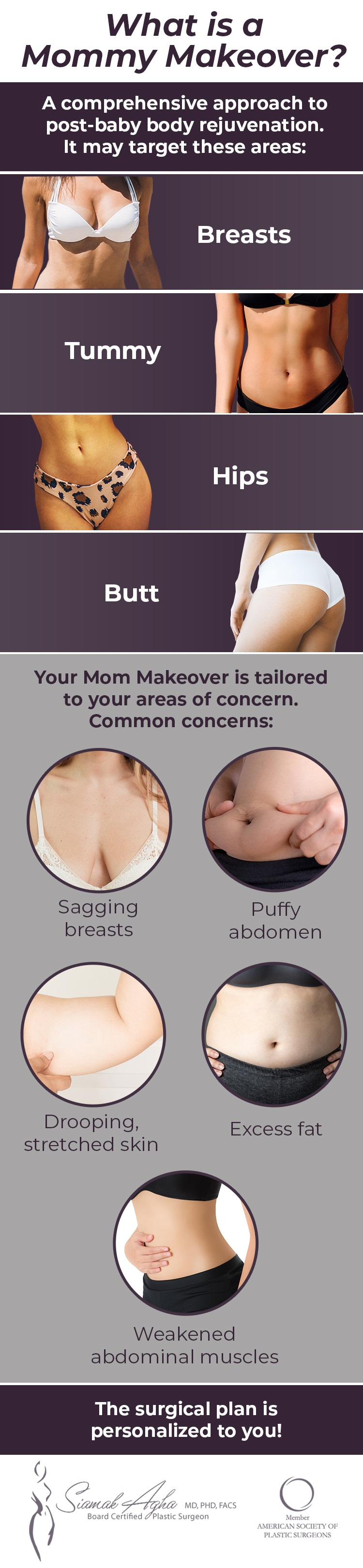 Infographic describing the Mommy Makeover procedures