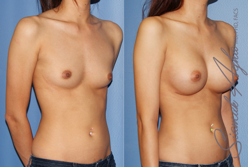 Orange County Newport Beach breast augmentation 42 Front Right View