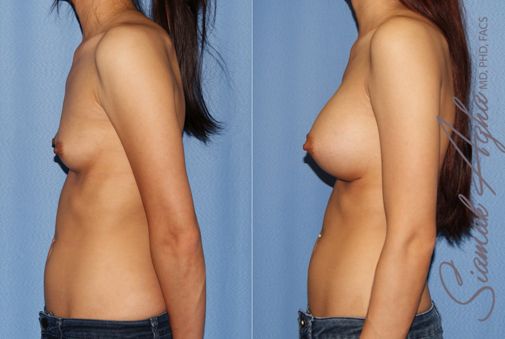 Orange County Newport Beach breast augmentation 42 Left Front View