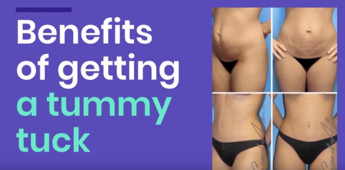 Tummy Tuck Candidates