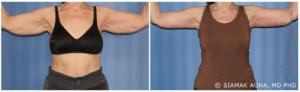 arm reduction surgery