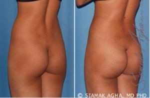 Brazilian Butt Lift Recovery