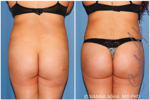 butt enhancement results