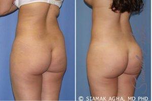 Buttock Contouring