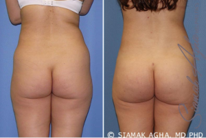 Buttock Enhancement Recovery