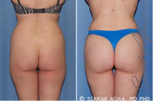 Buttocks Liposuction Surgery