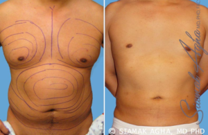 Chest Liposuction