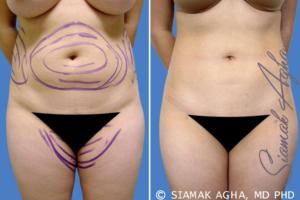 liposuction education