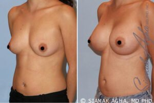 TUBA Breast Enlargement
