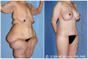 Total Body Lift Surgery