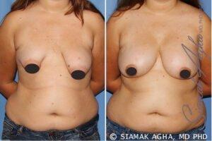 Tubular Breast Procedure Risks