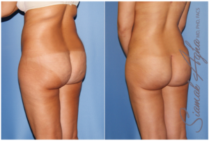 water-jet liposuction