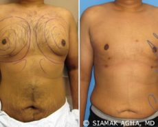 Orange County Liposuction Patient 1